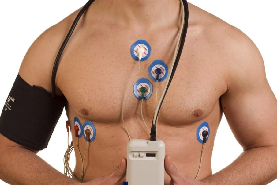 24 Hours Holter Monitor